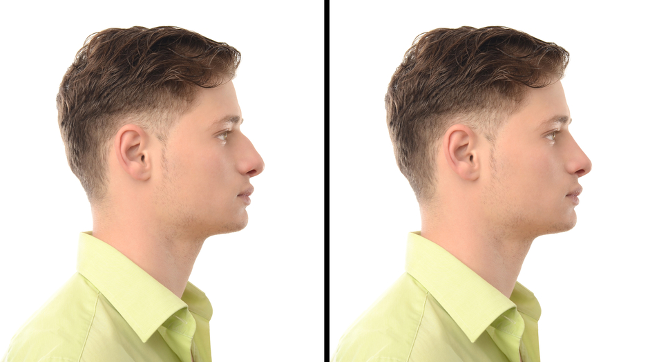 Life After Rhinoplasty - Ontario Canada Rhinoplasty