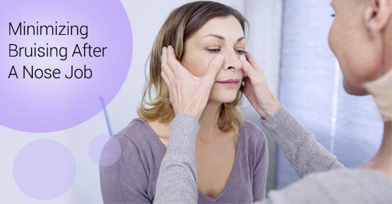 Minimizing Bruising After A Nose Job
