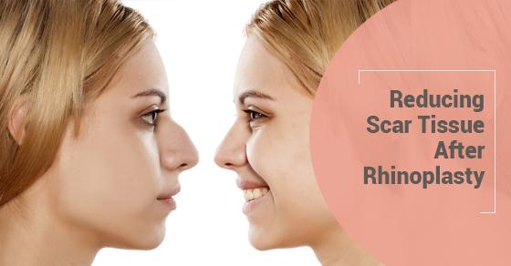 Reducing Scar Tissue After Rhinoplasty