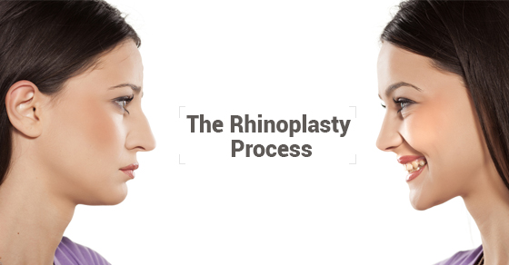 The Rhinoplasty Process