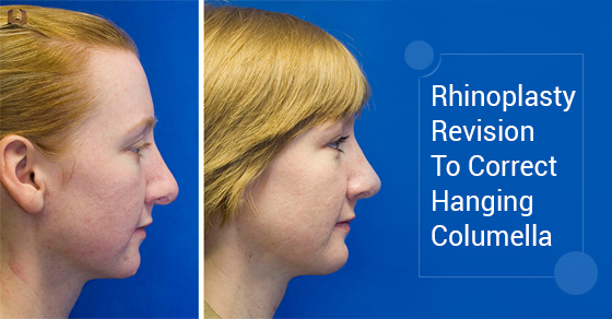 Rhinoplasty Revision To Correct Hanging Columella