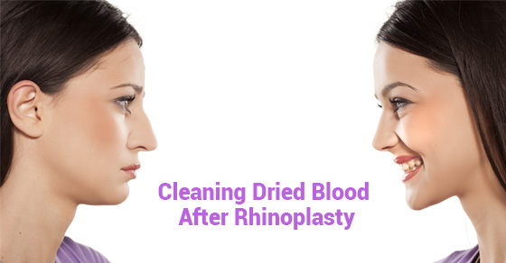 Cleaning Dried Blood After Rhinoplasty