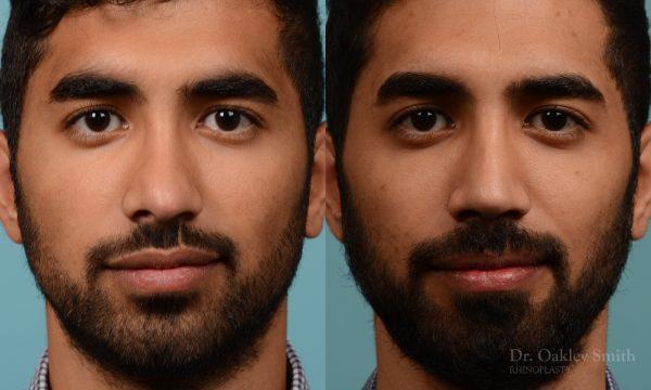 Male rhinoplasty to refine the nose