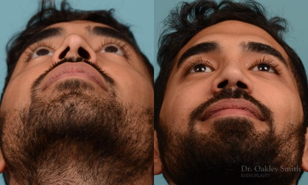 Male rhinoplasty to refine the nose