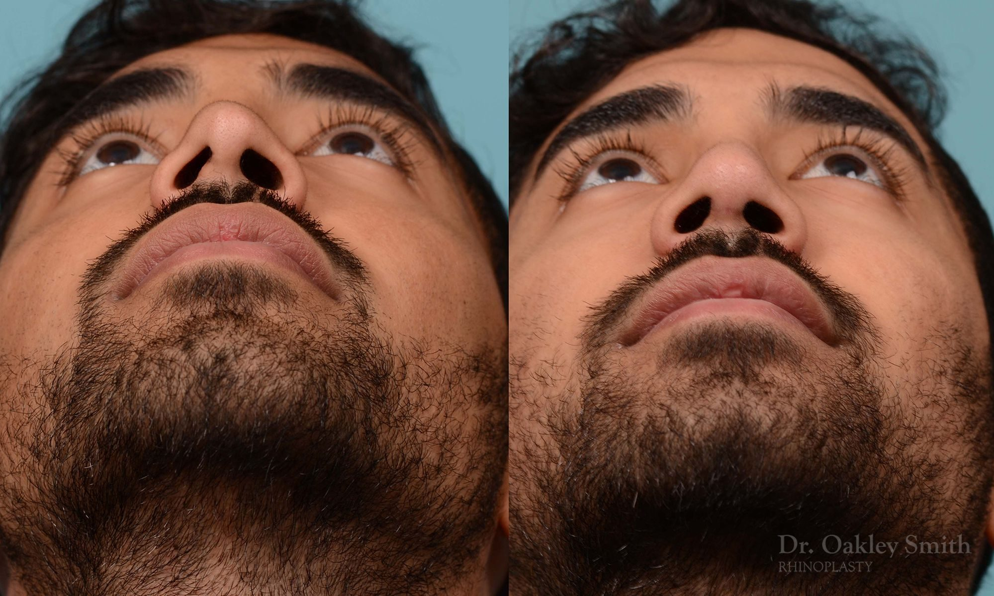 Rhinoplasty - Rhinoplasty Toronto Before and After Case 201