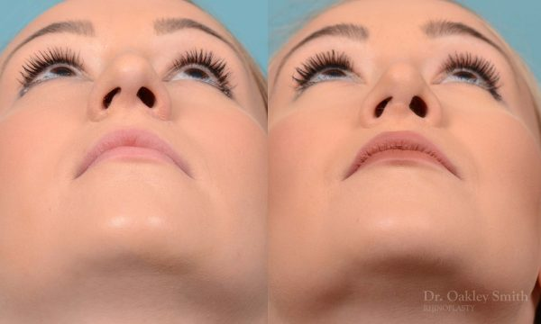 Rhinoplasty - Rhinoplasty Toronto Before and After Case 202