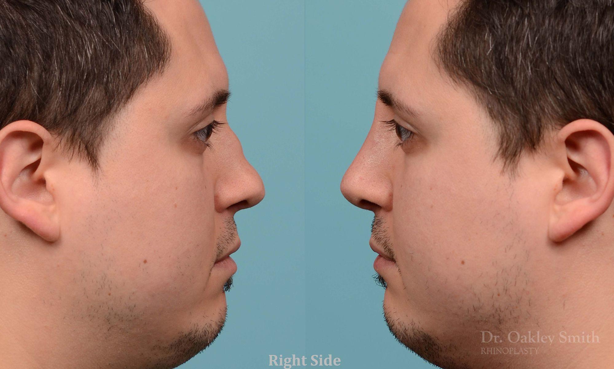 Revision Rhinoplasty, Rhinoplasty - Rhinoplasty Toronto Hump Reduction Case 203