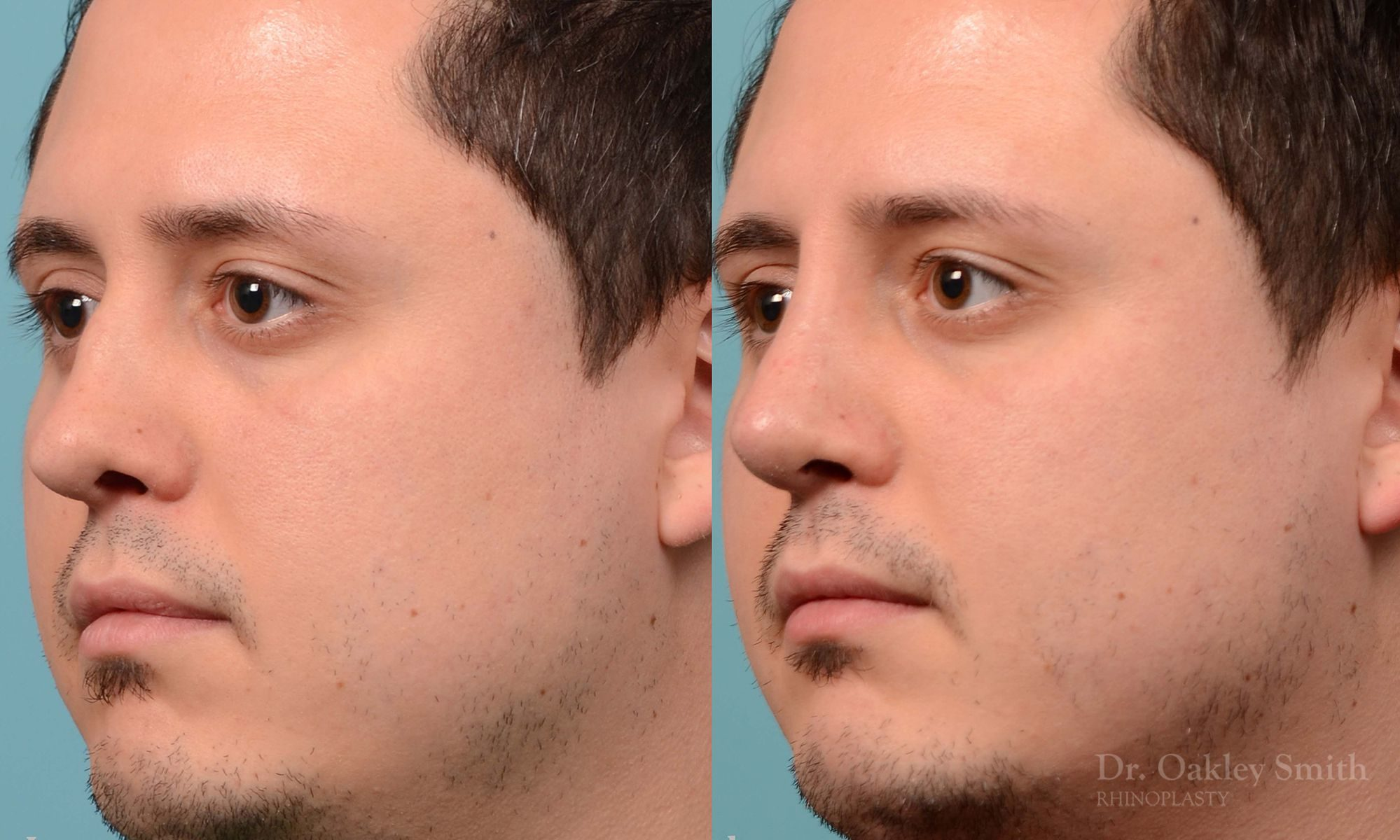 Revision Rhinoplasty, Rhinoplasty - Rhinoplasty Toronto Hump Reduction Case 203