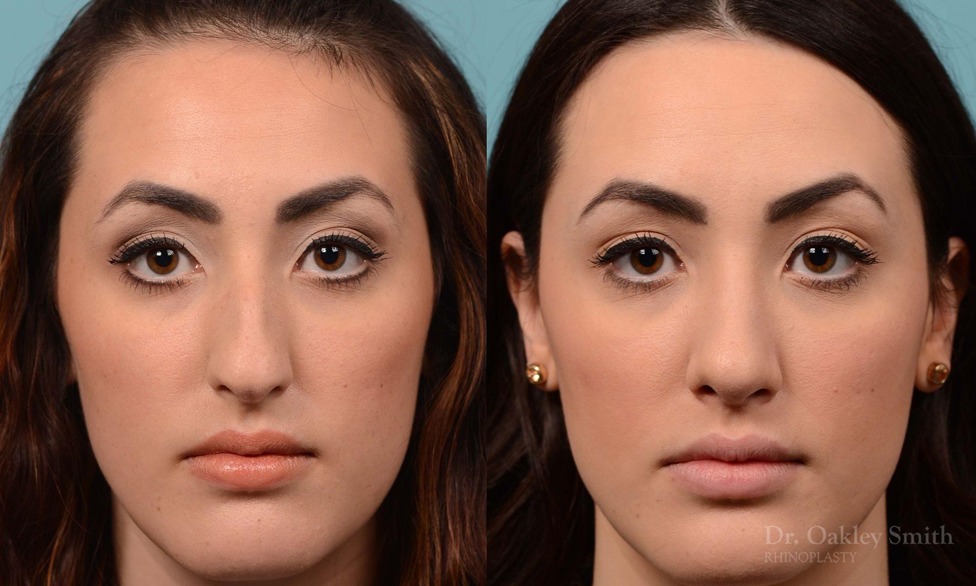 Bump removal rhinoplasty on female