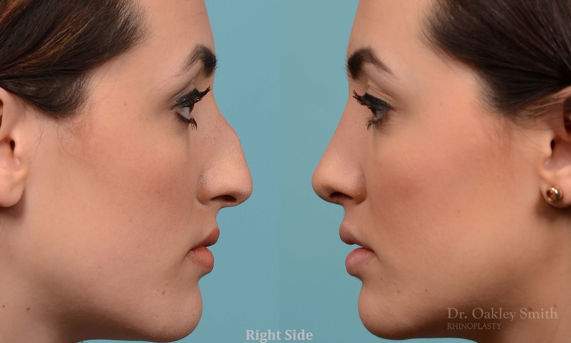 rhinoplasty ontario dr oakley smith surgeon