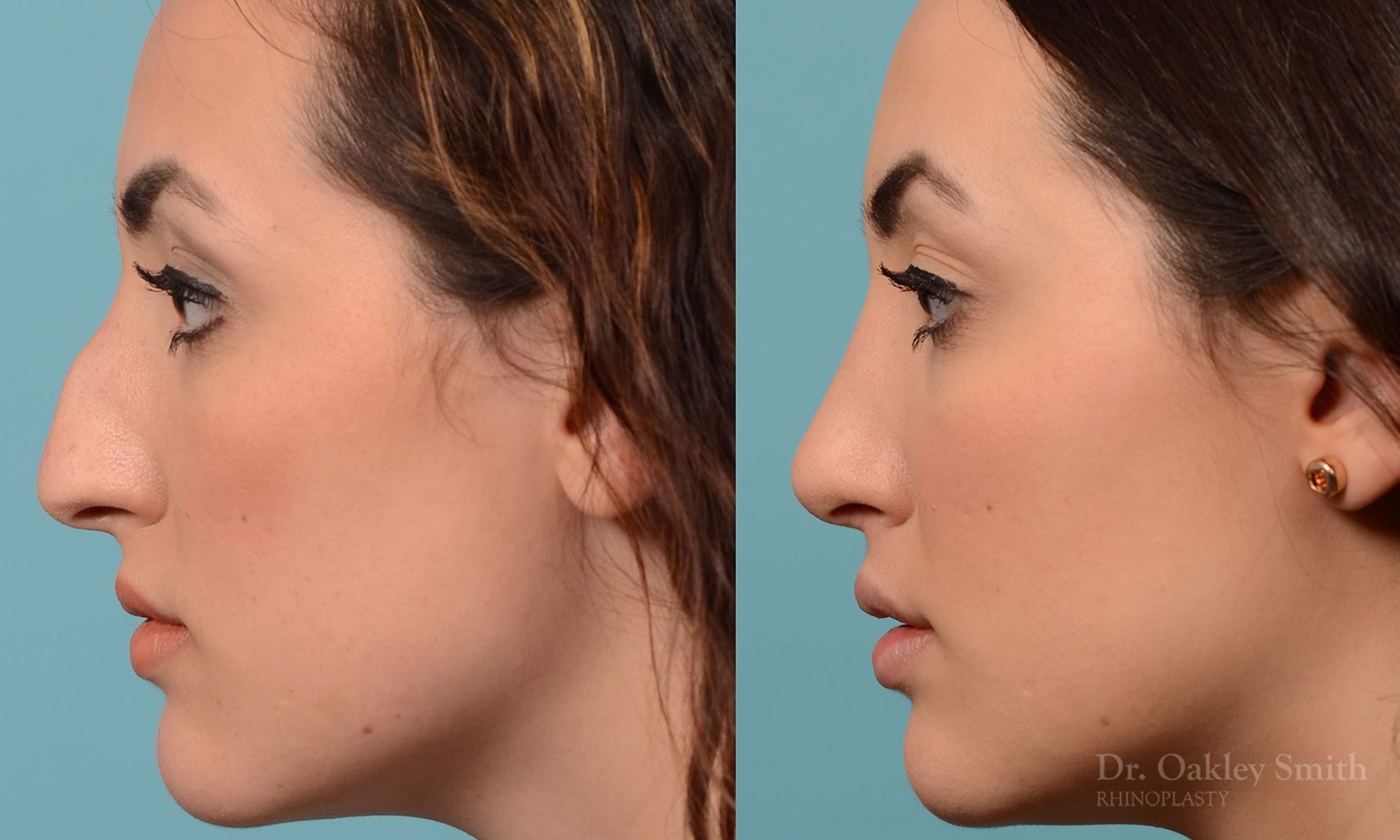 Bump removal rhinoplasty on female