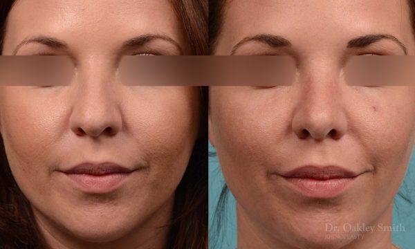 female rhinoplasty and hump reduction