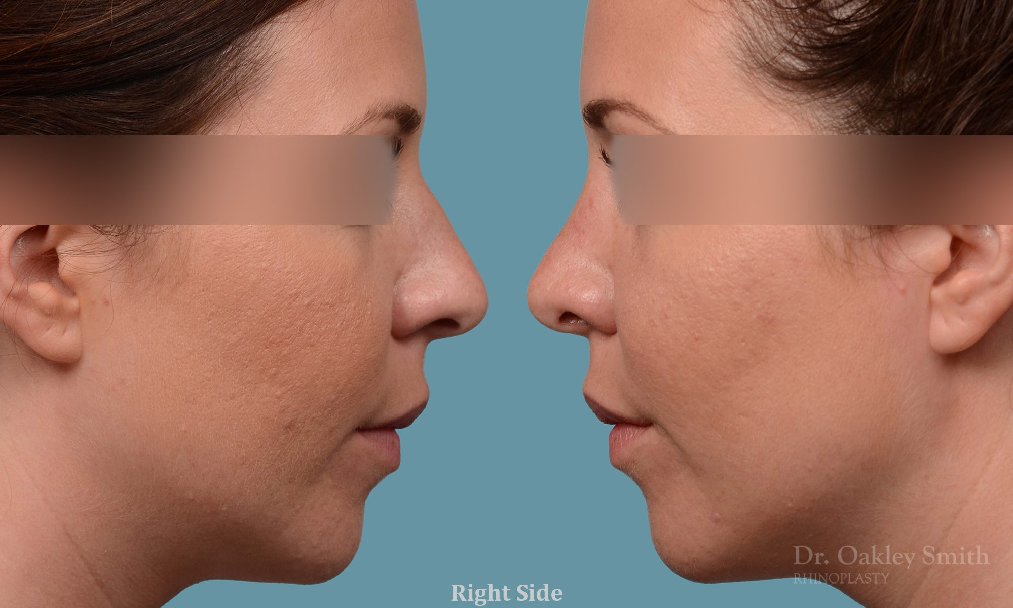 female rhinoplasty and hump reduction