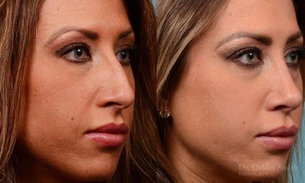 Rhinoplasty - Rhinoplasty Nose Surgery Before After Case 208