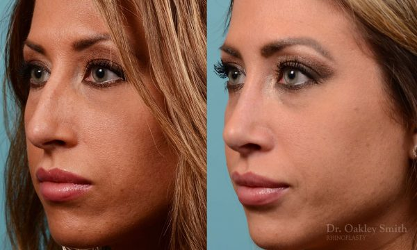 Nose surgery for hump reduction