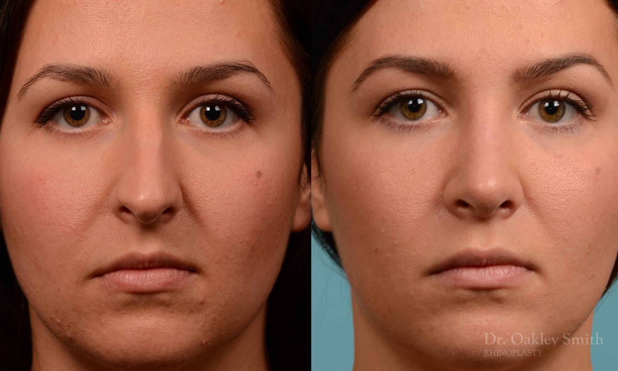 Rhinoplasty hump reduction surgery