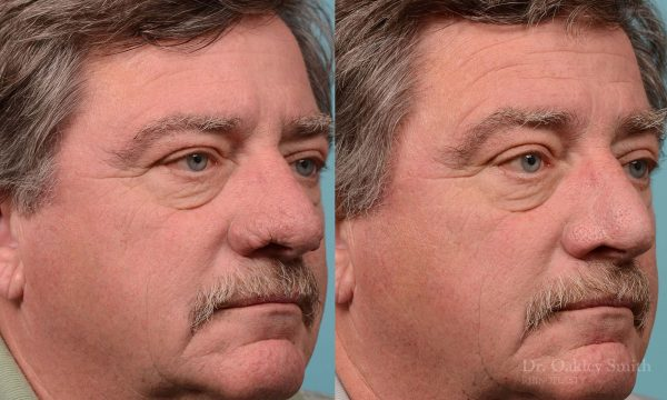 rhinoplasty rhinophyma elderly man