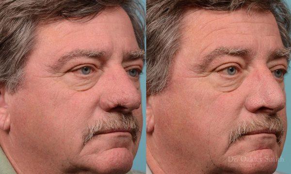 rhinoplasty rhinophyma elderly man