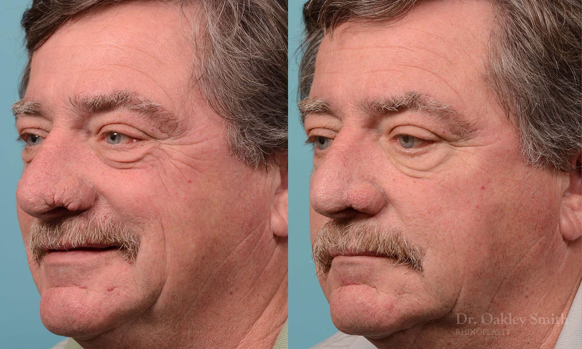 rhinoplasty elderly man