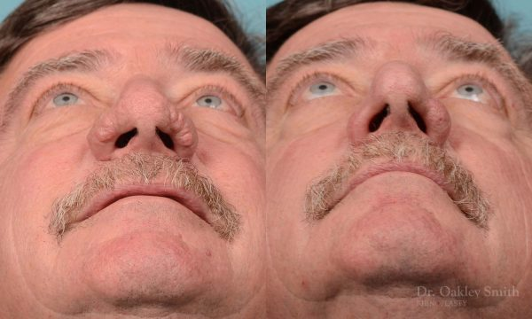 rhinoplasty elderly man
