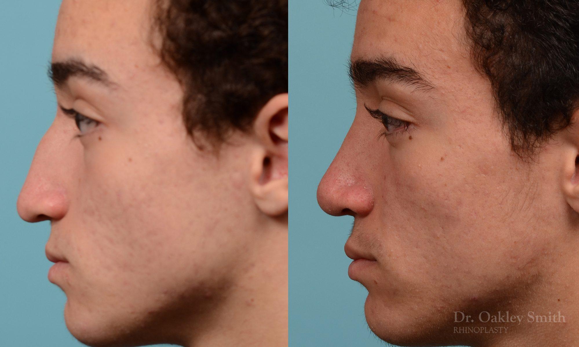Broken nose rhinoplasty
