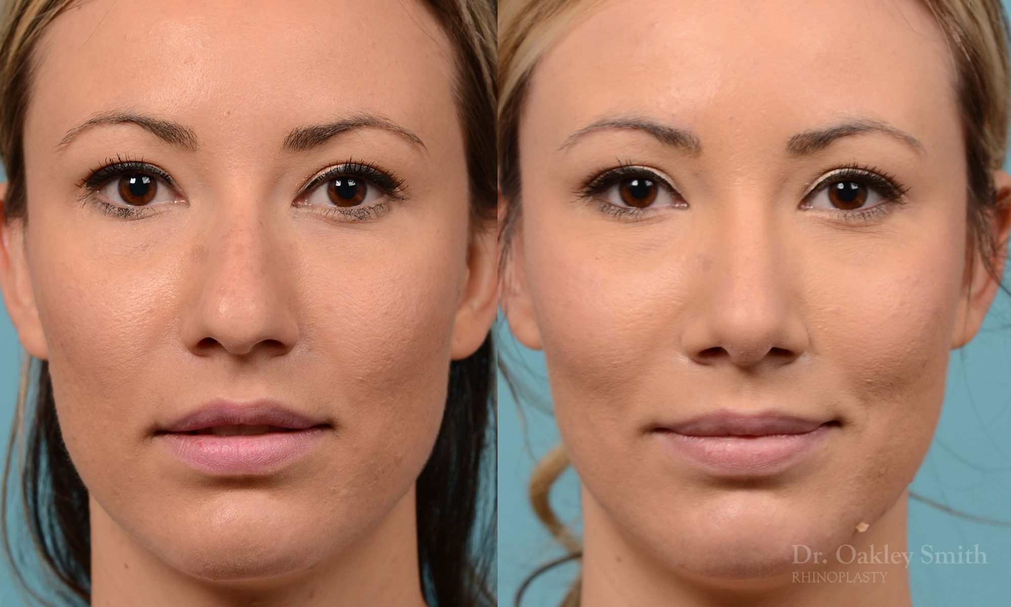rhinoplasty bump removal
