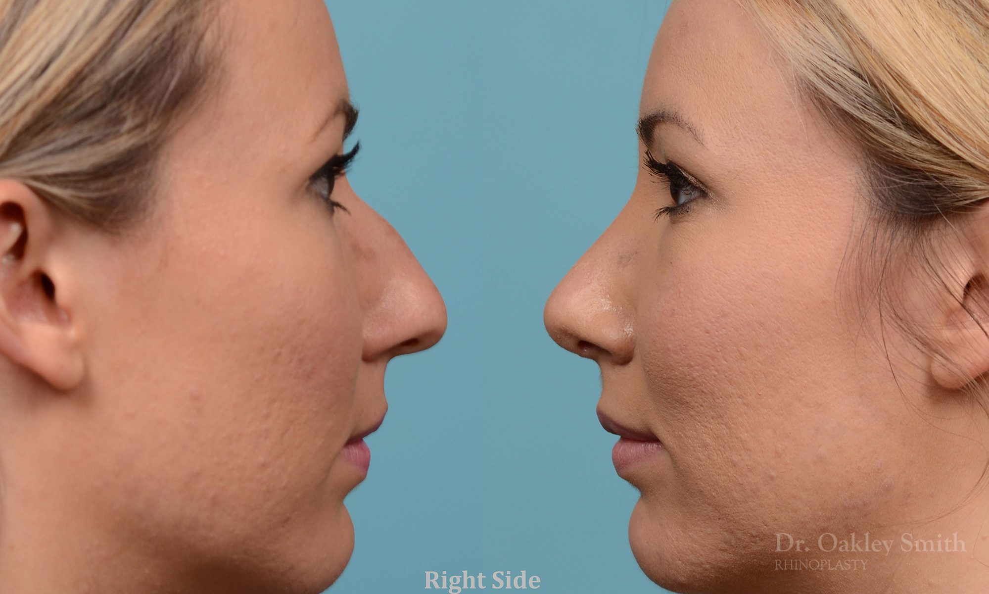 rhinoplasty bump removal