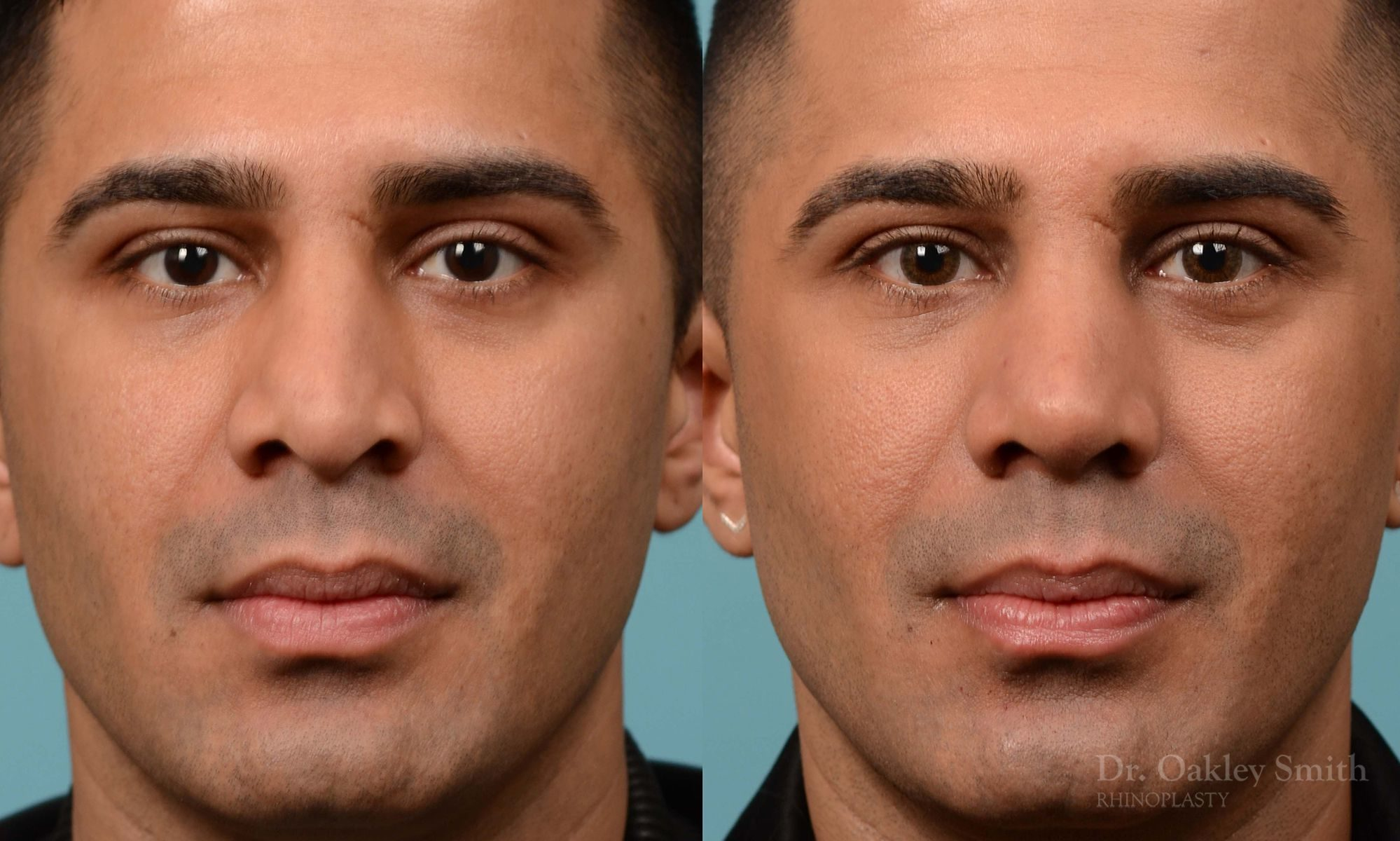 Nose reduction and bse of nose narrowing