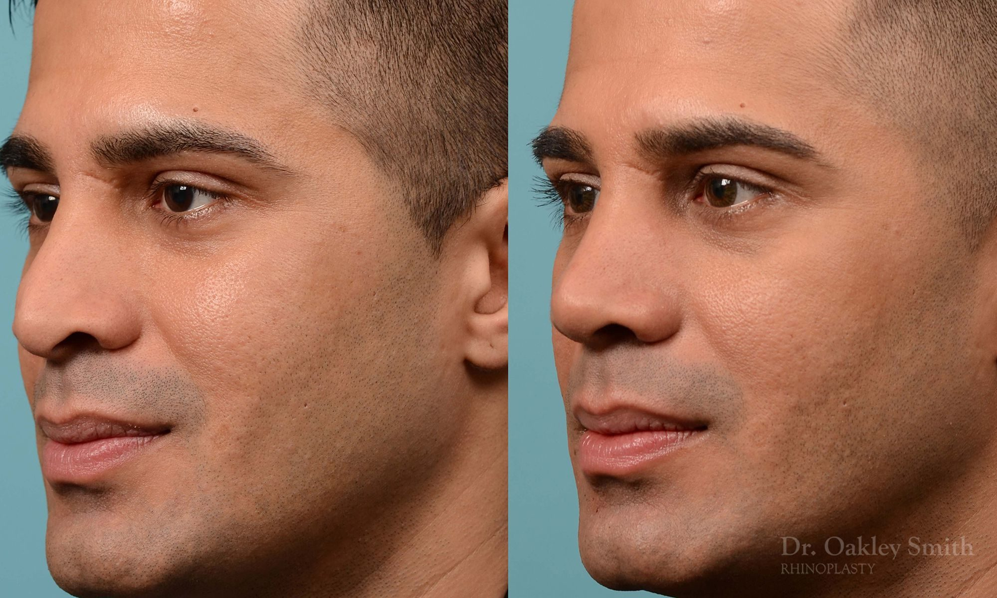 Nose reduction surgery and base of nose narrowing