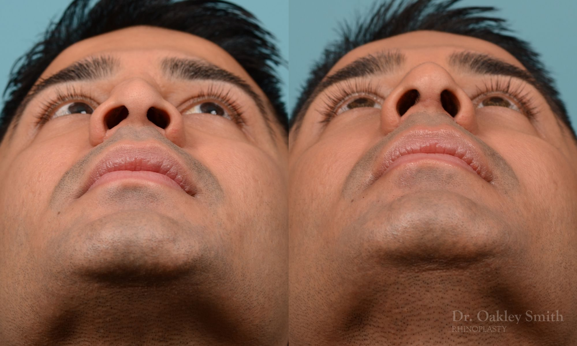 Nose reduction rhinoplasty and base of nose narrowing