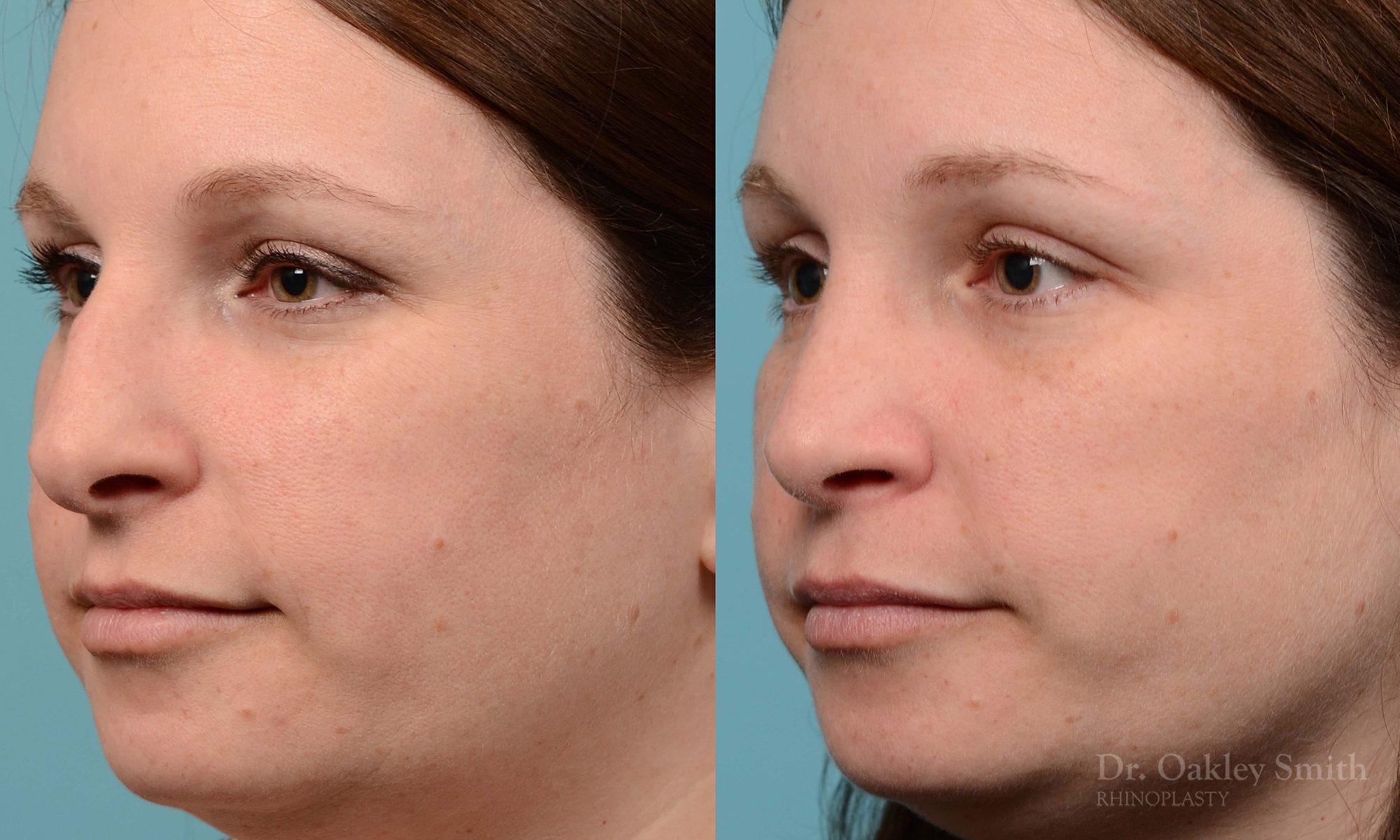rhinoplasty nose surgery on female