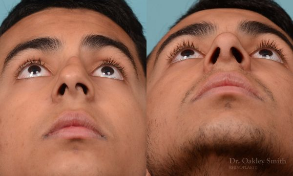 Hump reduction rhinoplasty on young male