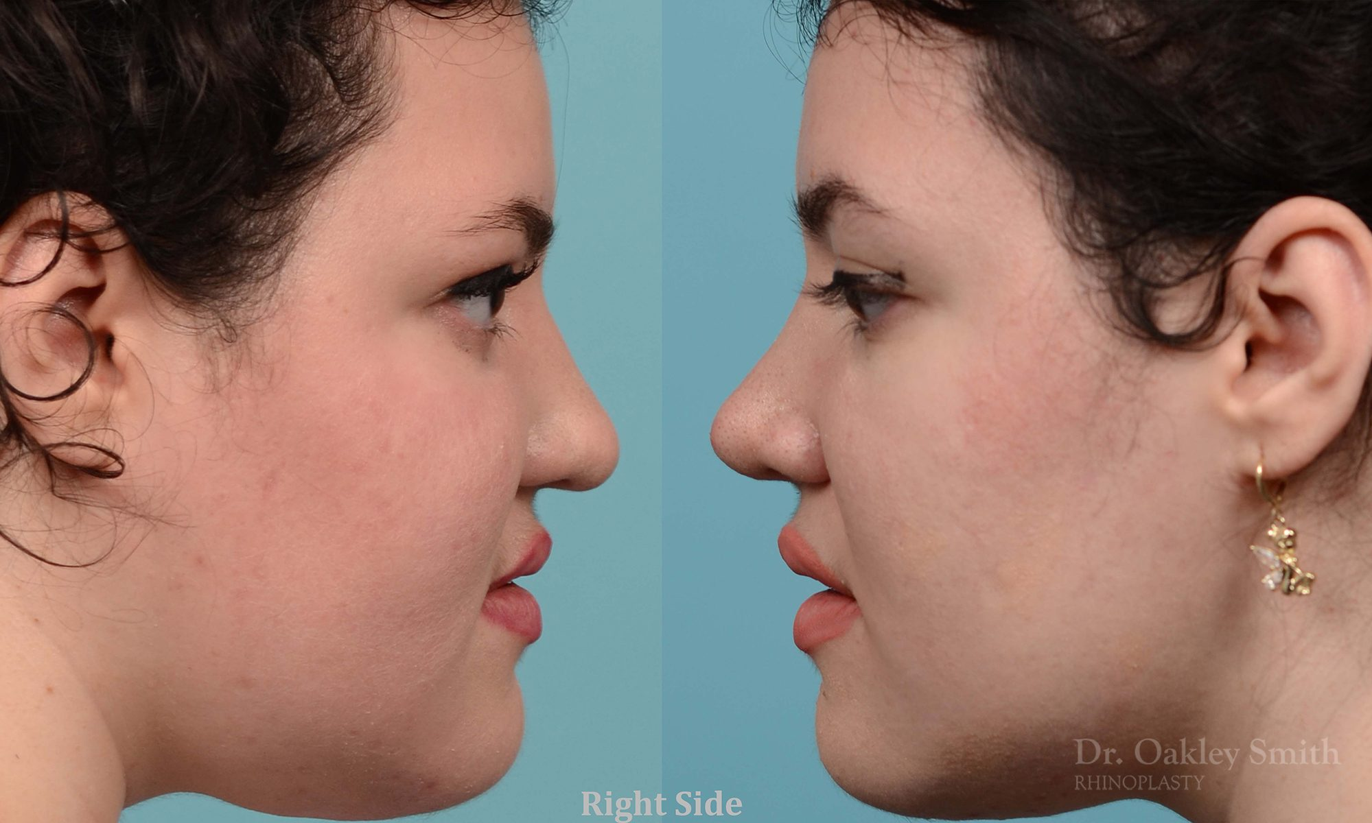 Rhinoplasty surgery to create a slightly curved profile view