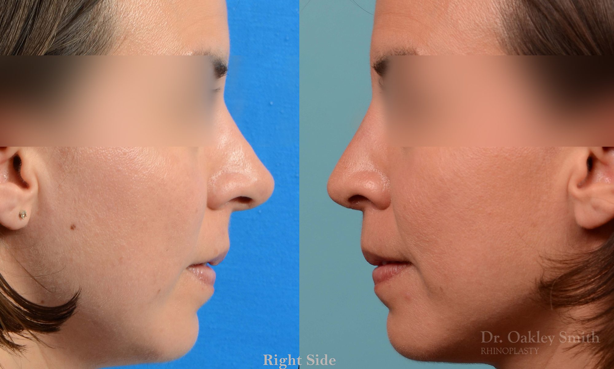 Rhinoplasty tip reduction