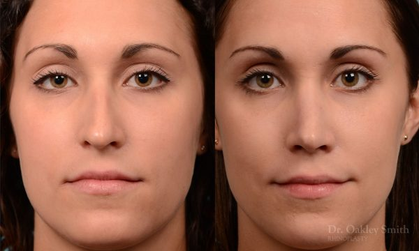 Rhinoplasty Hump removal and straightening