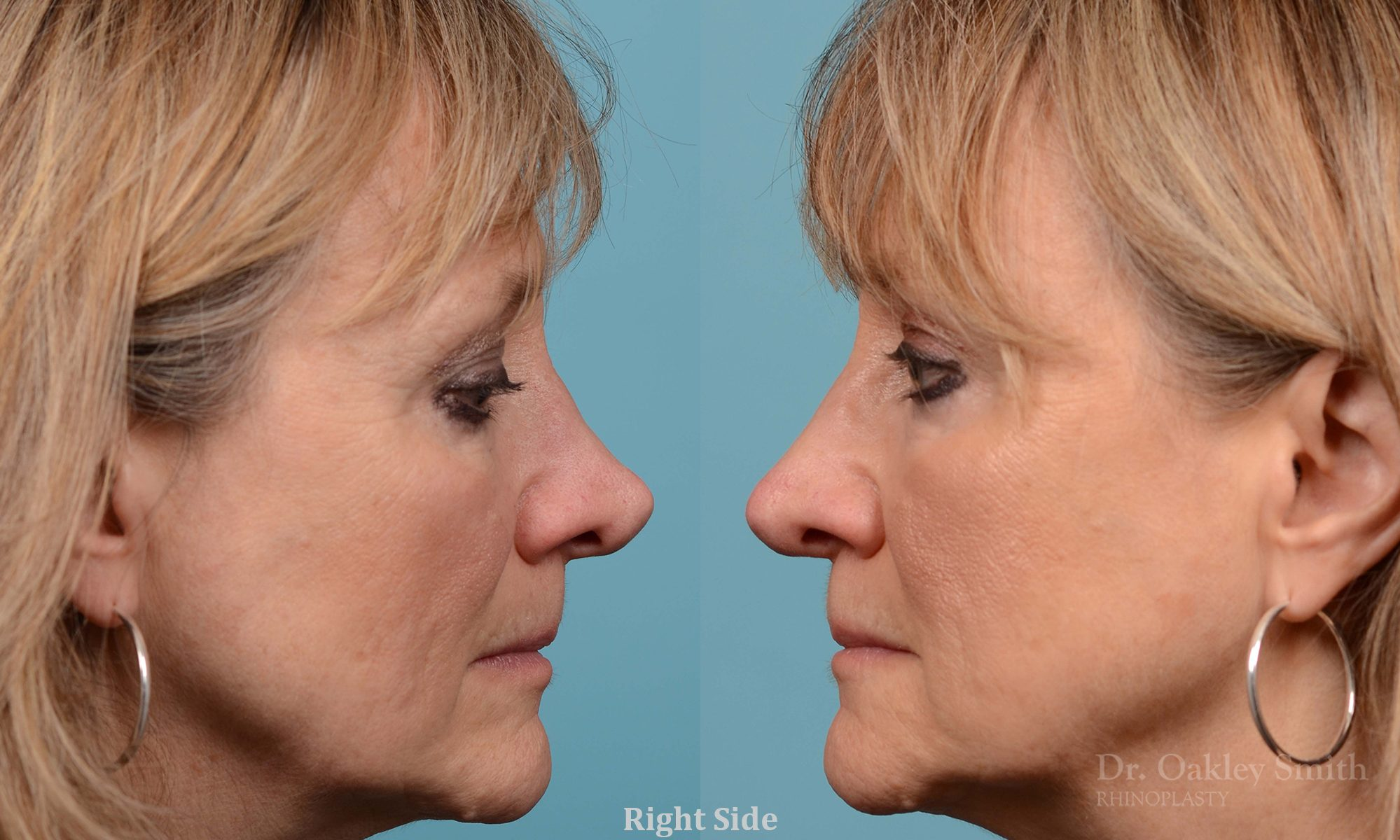 Rhinoplasty to smooth out her nose