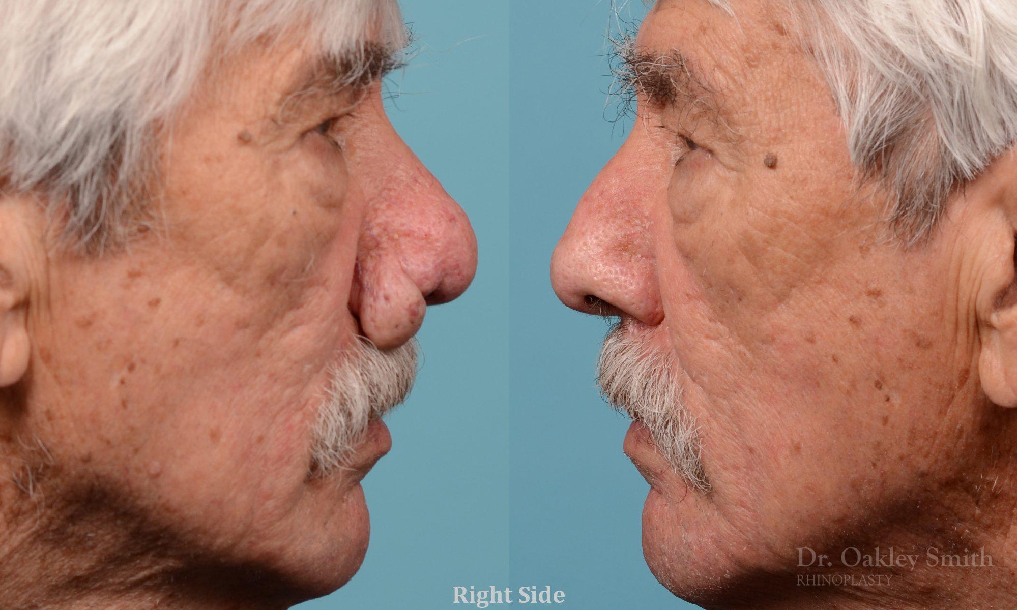 Rhinophyma on elderly man