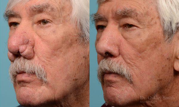 Rhinophyma on elderly man