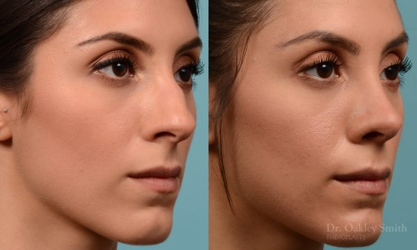 Rhinoplasty to reduce the bridge