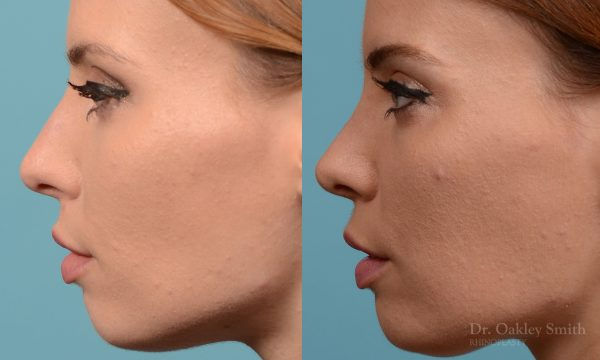Rhinoplasty nose surgery to shorten her nose