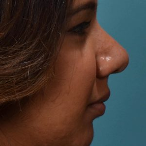 rhinoplasty defined nose