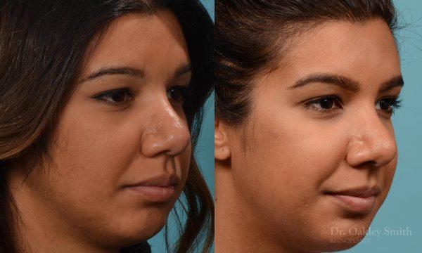 rhinoplasty defined nose