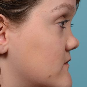 rhinoplasty smooth tip