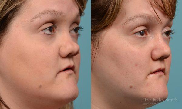 rhinoplasty smooth tip