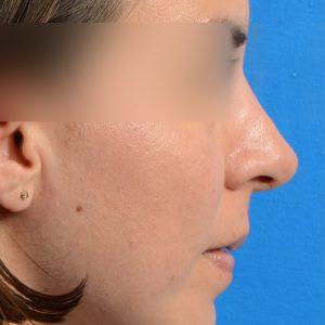 Revision Rhinoplasty, Rhinoplasty - Rhinoplasty Before and After Case 221