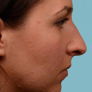 Rhinoplasty hum reduction surgery on female