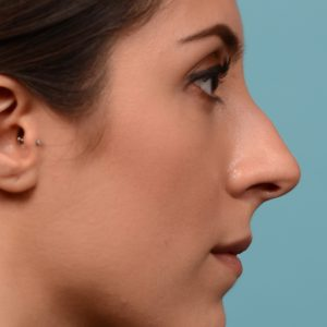 Rhinoplasty surgery to create a smoother bridge
