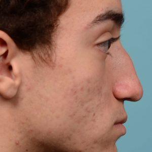 Broken nose rhinoplasty