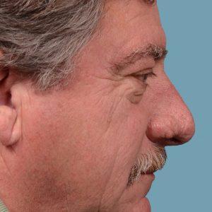 rhinoplasty rhinophyma