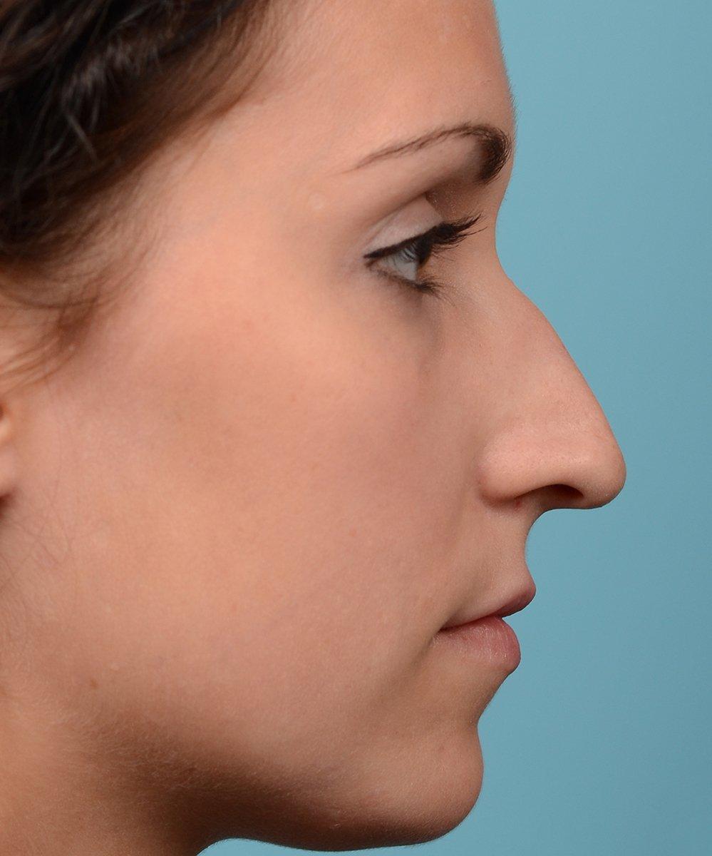 stem-nose